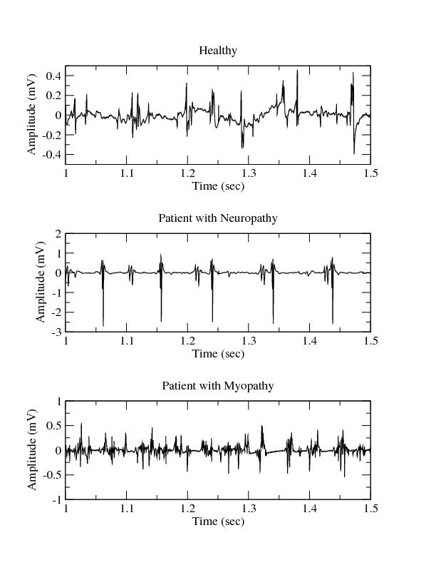 Examples of Electromyograms