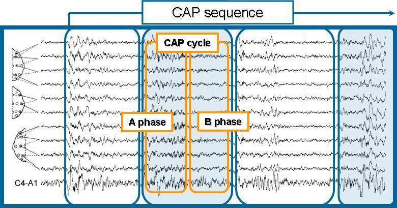 CAP Sleep Database v1 0 0