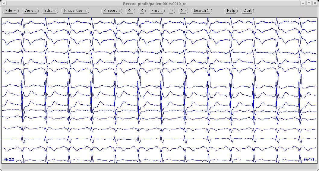 QT Interval Measurement - The PhysioNet Computing in